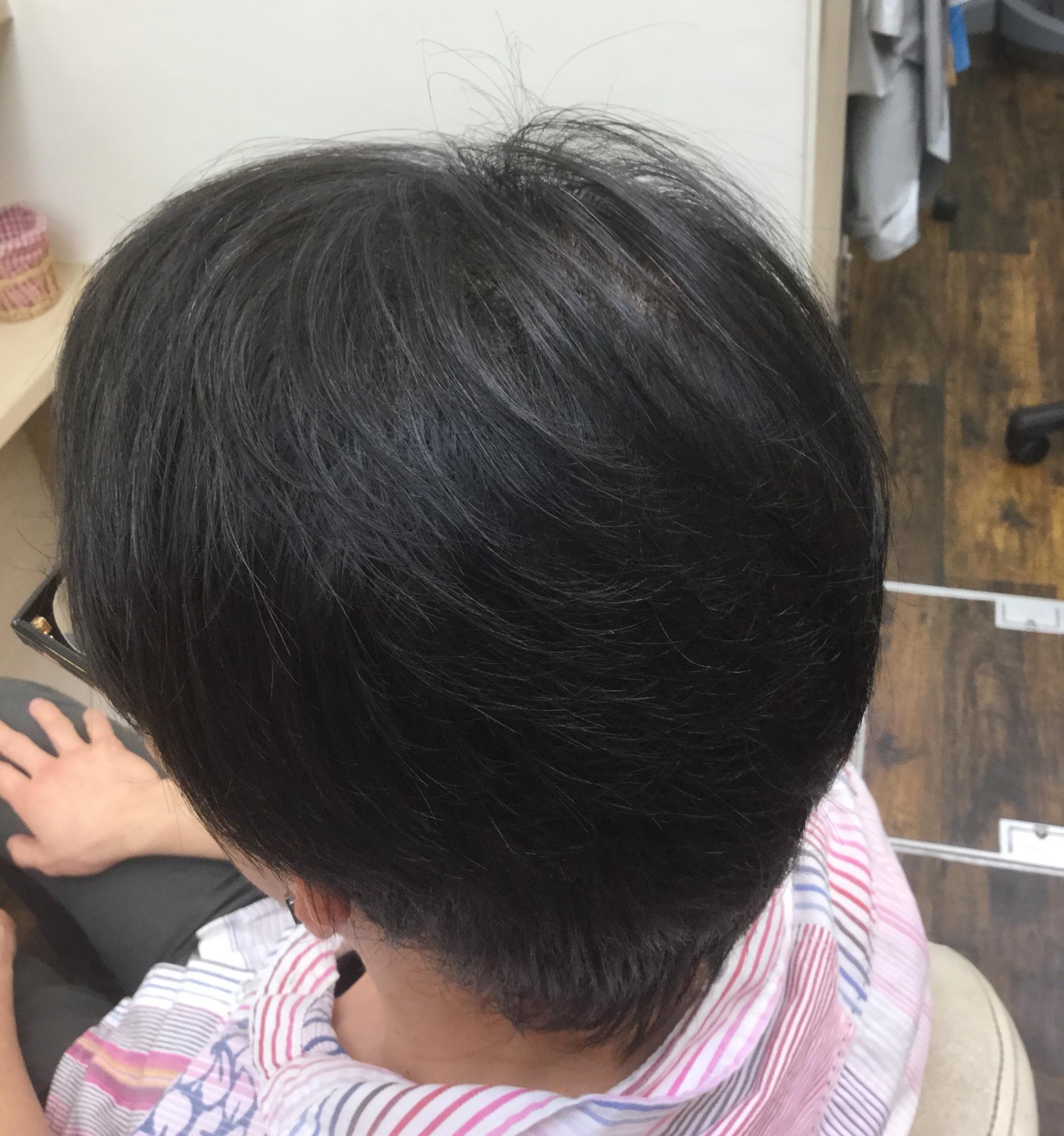 増毛セット後